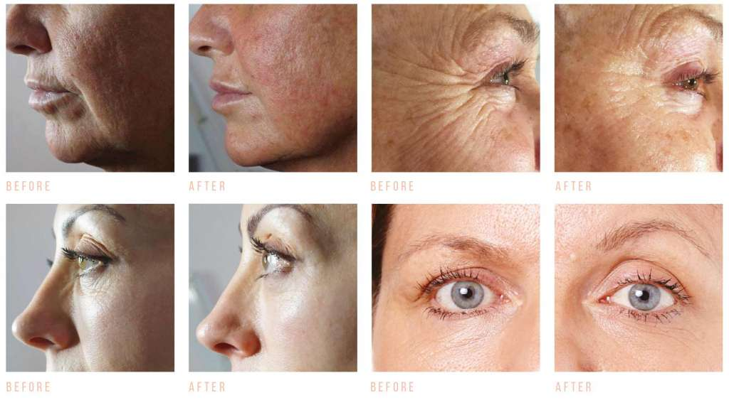 JR Beauty treatment CACI before and after