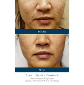 SKINPen before and after 3 procedures