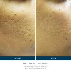 SKINPen before and after 5 procedures